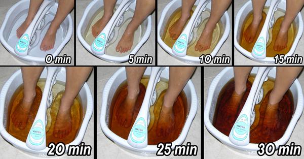 electroliza pentru detoxifiere ca adulți pentru a elimina viermii